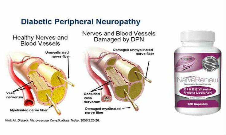 NERVE RENEW Reviews – Sciatic Nerve, Neuropathic Pain Breakthrough?  never pains remendies never renew  http://www.easybodyfit.com/nerve-renew/