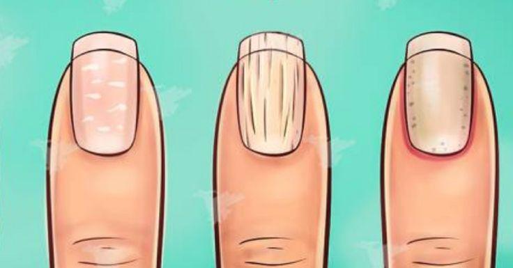 Pewnie nie zdajesz sobie z tego sprawy ale kształt i wygląd twoich paznokci może oznaczać o stanie twojego zdrowia. Sprawdź jakie: 1. Paznokcie zakrzywione w dół Ten kształt paznokci jest dość charakterystyczny i nietrudno go rozpoznać. Często tego