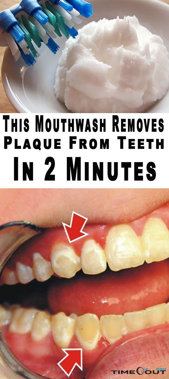 how to get rid of white plaque on teeth
