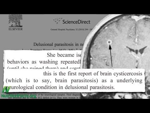 Not So Delusional Parasitosis | NutritionFacts.org