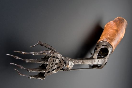 hand and arm prothesis