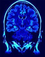 What Causes a Tumor on the Pituitary Gland?