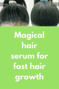 Magical hair serum for fast hair growth Magical Hair serum for HAIR GROWTH/ hair regrowth serum  Get long and smooth hair/Growing Longer Hair Quickly/how to get long silky shiny healthy hair To prepare this serum you will need Aloe vera gel (If you do nit have fresh aloe vera gel, you can also buy it from market Onion juice – Grate and …