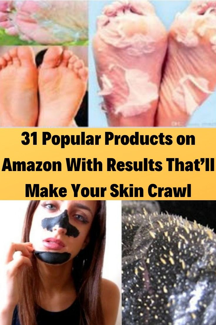 31 Popular Products on Amazon With Results That'll Make Your