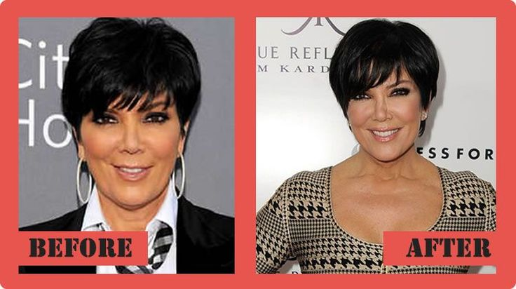 Kris Jenner Plastic Surgery Before And After Kris Jenner Plastic Surgery #KrisJennerPlasticSurgery #KrisJenner #celebritypost