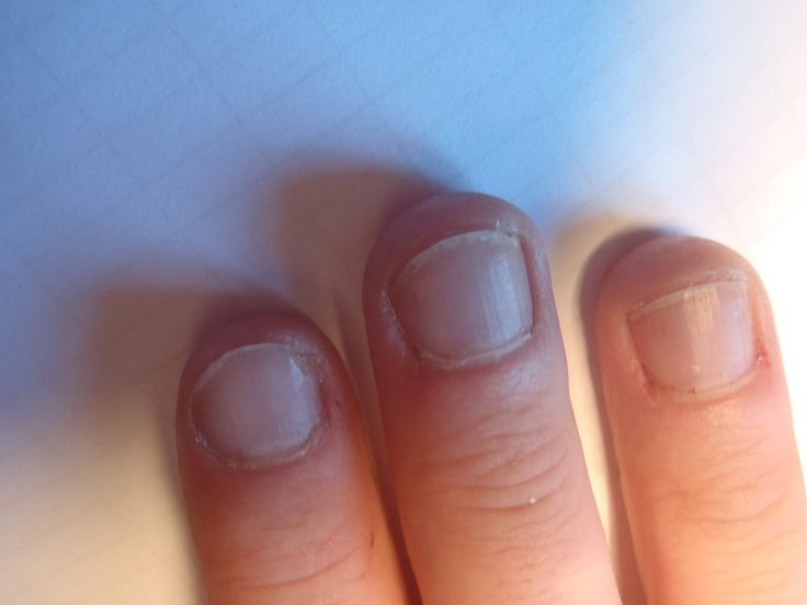 872 best Toenail Fungus Feet Care images on Pinterest | Fungi ...