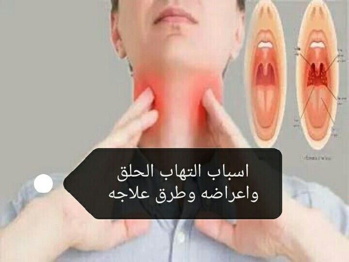What S The Sore Throat Causes How To Treat It Sore Throat Soreness Throat