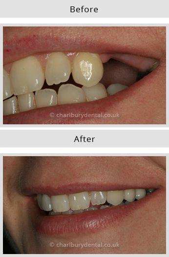 Dental Implant 2  @ http://www.charlburydental.co.uk/dental-implants-oxfordshire.html