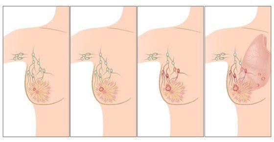O tomto musíte vedieť. Čo je hlavnou príčinou rakoviny prsníka?