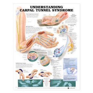 carpal tunnel exercises | Basic Carpal Tunnel Exercises To Treat Your Carpal Tunnel Symptoms
