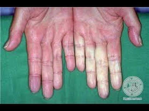 Raynaud's Disease and a Remedy for it. - YouTube
