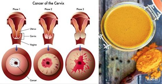 Turmeric is a Potent Inflammation and Cancer Fighter: How Much You Should Take & How Often