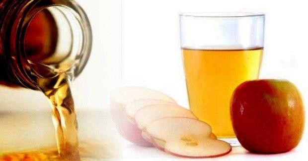 Elma sirkesinin varise rahatlatıcı etkisi