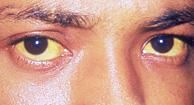 21 Causes of Yellow eyes
