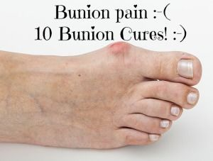 10 Bunion Cures – How to Get Rid of Bunions > #shoes #inserts #insoles #heels #toes