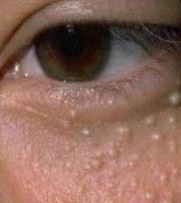 szem alatti zsírcsomók eltüntetése házilag