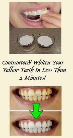 Guaranteed! Whiten Your Yellow Teeth In Less Than 2 Minutes! | Remedies