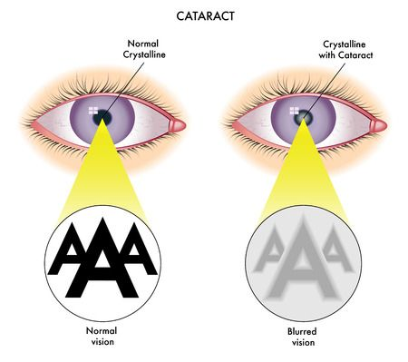 http://www.eyeglasspeople.com/blog/2017/9/eye-diseases-disorders-and-floaters-causes-symptoms-and-treatments.html