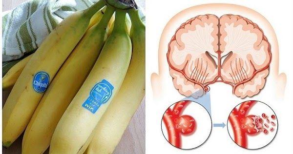 Los plátanos son ricos en una serie de nutrientes