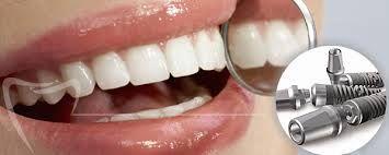 La libertad de sonreir no tiene precio. Hoy la Implantología te ofrece esta posibilidad, Olvida los temores de hablar y reir libremente por la inestabilidad de las viejas dentaduras. Disfruta de los avances tecnológicos de la Odontología. Un útil odontotip del mejor aliado de tu sonrisa: Centro de Especialidades Odontológicas Beraca Tecnología Ciencia y Arte al servicio de su Sonrisa