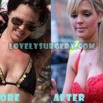 Danielle Lloyd Plastic Surgery