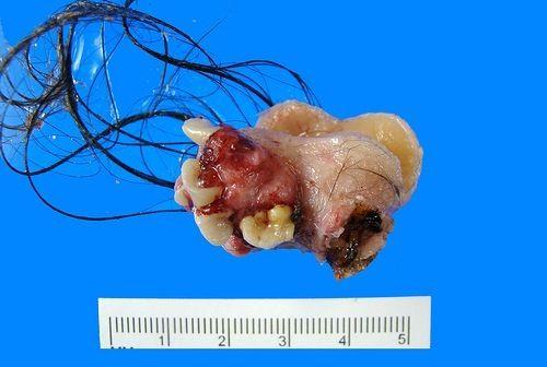 Un tipo de tumor llamado teratoma puede hacer crecer dentro de sí mismo tejidos humanos, como cabello, hueso, dientes y piel.