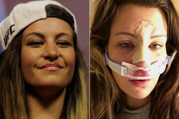 Miesha Tate assusta fãs com foto após cirurgia no nariz - http://anoticiadodia.com/miesha-tate-assusta-fas-com-foto-apos-cirurgia-no-nariz/