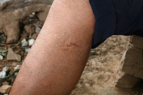 27 best Bullet wounds (Warning: Graphic) images on ...