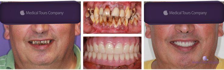 Dinti intr-o zi #extractii dentare #implanturi dentare #proteza fixa