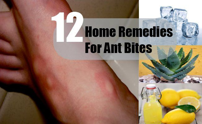 12 Home Remedies For Ant Bites | http://www.searchhomeremedy.com/home-remedies-for-ant-bites/
