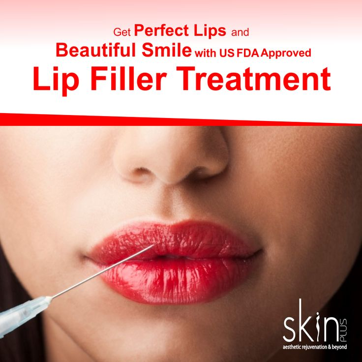 Lip augmentation is basically a #cosmetic #surgical procedure which can give you fuller and #plumper #lips. Get perfect #lips and #beautiful smile with US FDA Approved Lip filler #treatment #SkinPlus