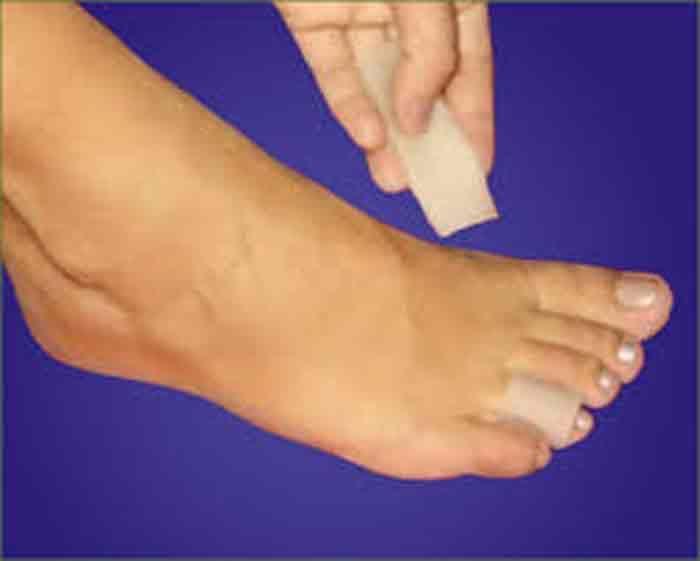 <p>Remédio caseiro para eliminar calos nos pés Ingredientes : – Óleo de amêndoas doce. – 2 comprimidos de ácido acetilsalicílico (aspirina). Preparação : Dissolva os comprimidos de aspirina em uma colher de sopa do óleo de amêndoas doce. Misture bem. Utilização : Faça uma massagem no pé com a mistura, …</p>