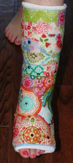 decorated leg cast. Mod podge and fabric brighten up a leg cast. Mod podge and fabric brighten up a leg cast