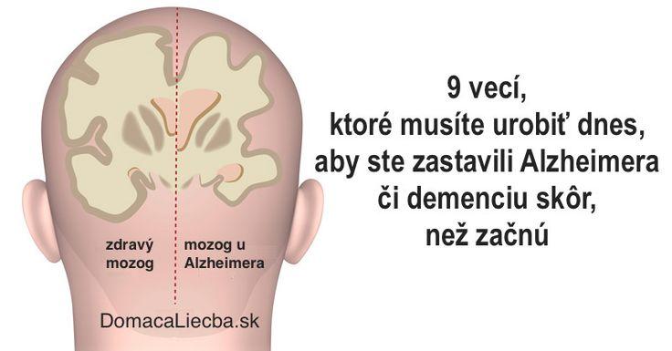9 věcí, které musíte udělat dnes, abyste zastavili Alzheimera či demenci dříve, než začnou
