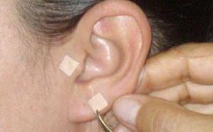 AURICULOTERAPIA  Se aplican pequeñísimas agujas o magnetos en zonas especiales de la oreja. Esta tiene la capacidad de disminuir la ansiedad y mantener el estimulo de la electro acupuntura por algunos días más. Son muy utiles en el manejo de situaciones adicionales de salud.