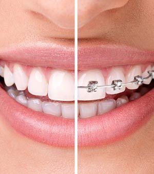 ¿Qué es mejor: Invisalign o brackets