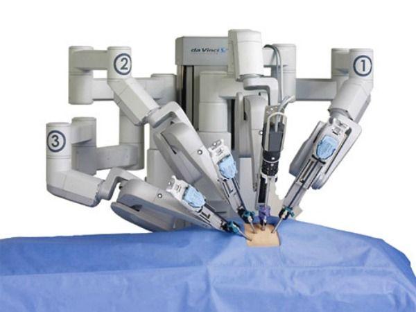 da Vinci robot surgery