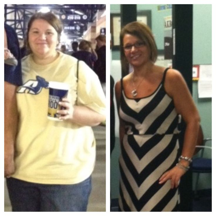 Gastric bypass, best decision EVER