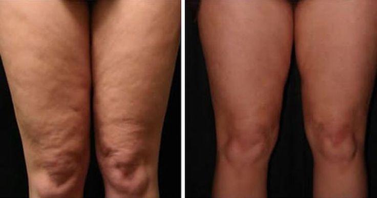 """La cellulite compare quando le cellule adipose, incaricate di depositare i grassi, crescono in modo anormale, bloccando la circolazione sanguigna, rendendo difficile l'ossigenazione dei tessuti e l'espulsione di tossine. A causa di tutto ciò, compare nel tessuto sottocutaneo superficiale la cosiddetta """"pelle a buccia d'arancia"""".  Le aree dove compare più spesso la cellulite sono le gambe, le ginocchia, le caviglie, la parte interna delle braccia, i fianchi, le natiche, il collo e la nuca…"""