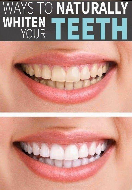 4 Ways to naturally whiten your teeth