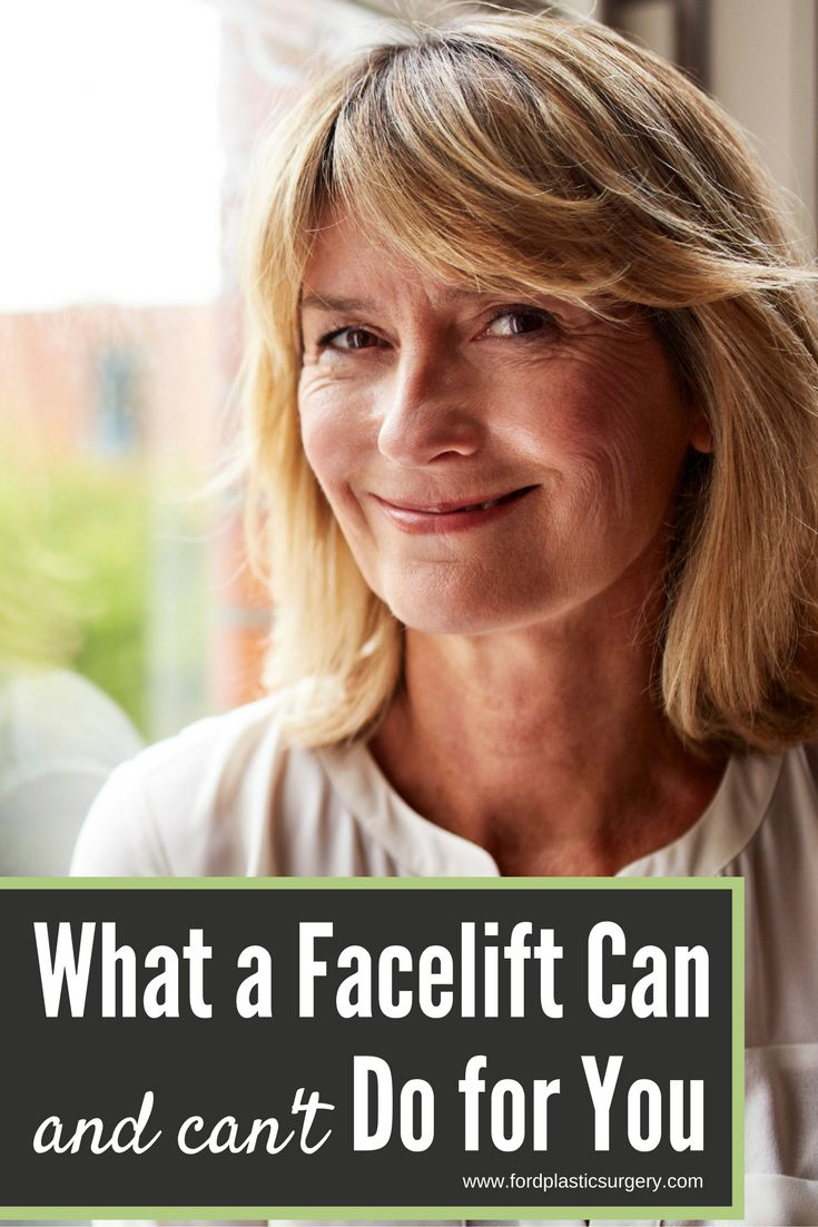 With good reason, facelift surgery routinely prevails as a popular option for cosmetic facial rejuvenation, but it's important to have a clear understanding of its virtues — and limitations. Briefly, these are the common concerns that facelift surgery can remedy, as well as the occasions when another option may be more appropriate.