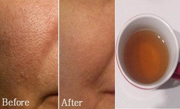 HOW TO REDUCE LARGE PORES INSTANTLY WITH ONLY 2 SIMPLE INGREDIENTS
