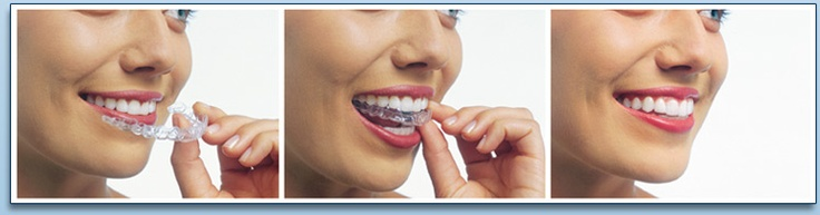 Straight Teeth Without Braces?  Clear Dental Braces Clemmons NC  It's true! With Invisalign™ it is possible to have straight teeth in as little as 9 - 15 months, whether you have overcrowding, widely spaced teeth, overbite, underbite, or crossbite.
