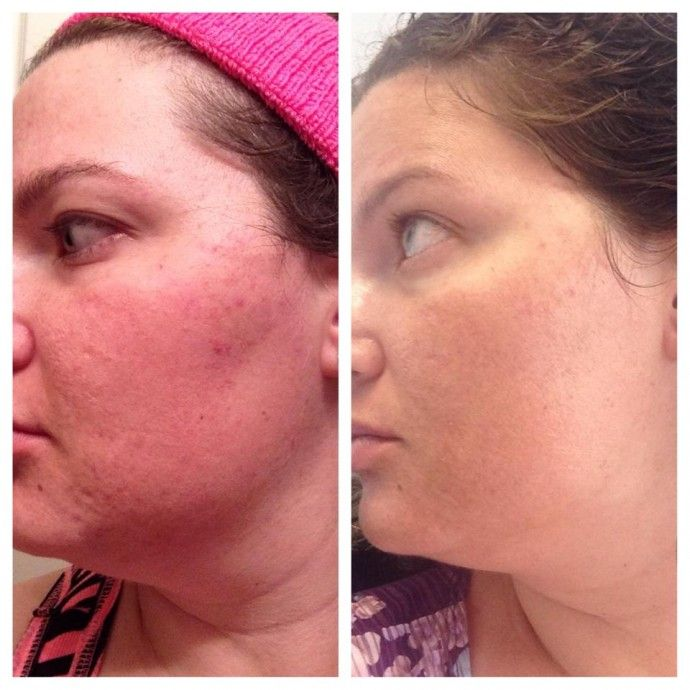 Rodan and Fields Review and A Give Away!