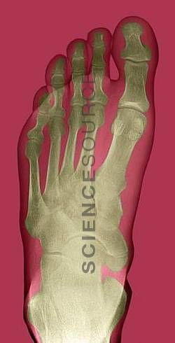 Colored #X-ray of a healthy human foot seen from the top. The #foot comprises 26 #bones and two sesamoid bones (not seen). The toes are formed from phalanx bones. There are two phalanges in the big toe, and three in the other four toes. Behind the toes are five long metatarsal bones. These articulate with the five tarsal bones of the mid-foot.  ©Du Cane Medical Imaging Ltd./Science Source #scan #xray #medicalimages #stockphotos #ScienceSource