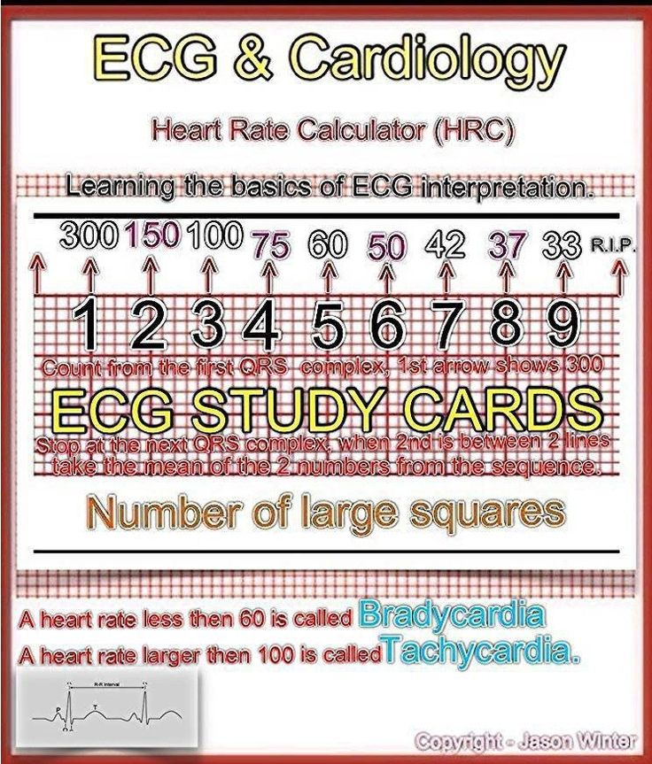 Online 12-lead ecg course tutorial | learntheheart. Com | best.