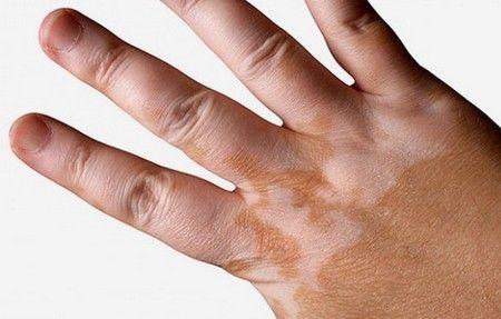 Tratamientos para el vitíligo   No debemos pensar en esta alteración de la piel como una enfermedad incurable. Es decir, si la tratamos correctamente, tendremos posibilidades de mejorarla, controlarla e incluso en ciertos casos curarla, haciendo que las manchas desaparezcan por completo. Lee más: http://saludtotal.net/tratamientos-para-el-vitiligo/