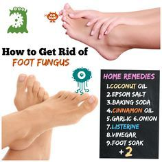 How to Get Rid of Foot Fungus #11 Athlete's Foot to Happy Feet. How to Get Rid of Foot Fungus: Home Remedies 1.Coconut Oil 2.Epsom Salt 3.Baking Soda 4.Cinnamon Oil 5.Garlic 6.Onion 7.Listerine 8.Vinegar 9.Foot Soak 10 Rubbing alcohol 11.Essential oil..