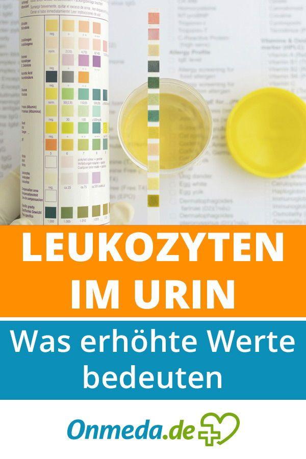 Leukozyten (weiße Blutkörperchen) im Urin: Was erhöhte