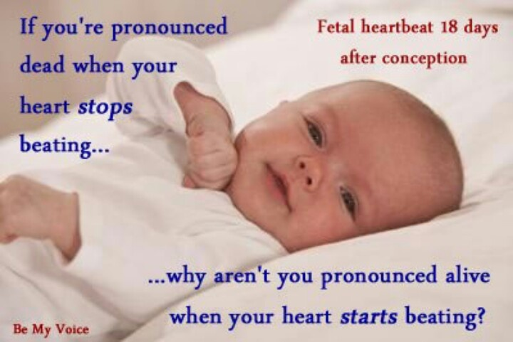 Praying for the unborn - they need our voice.